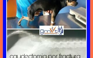 GMVt-caudectomiaporfractura