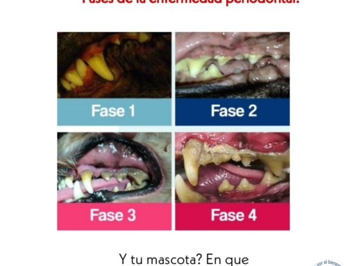 Fases de la enfermedad periodontal